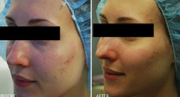 Dr-Conlon---Acne-Scars-Before-and-After